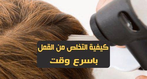 كيفية التخلص من القمل باسرع وقت يعتبر قمل الرأس من الأمراض الشائعة ويظهر في الغالب عند الأطفال إن القمل معدي جدا حيث أنه يمكن أن ينتقل بسهولة Lice Removal Hair