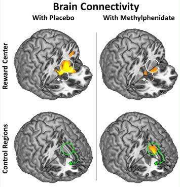A new study conducted at the U.S. Department of Energy's Brookhaven National Laboratory shows that a single oral dose of methylphenidate, a drug commonly used to treat attention deficit hyperactivity disorder (ADHD), modifies connectivity in particular disrupted brain circuits in ways that could potentially help improve self-control and reduce craving among cocaine-addicted individuals.