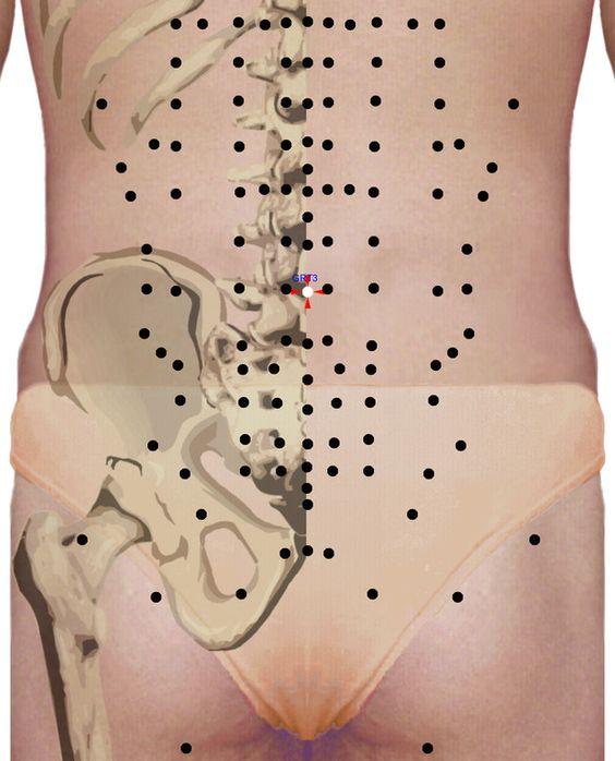 Punkty stymulacji metodą elektropunktury i akupunktury dla schorzenia: Artretyzm okolicy ledźwiowo- krzyżowej