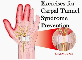 carpal tunnel syndrome prevention)