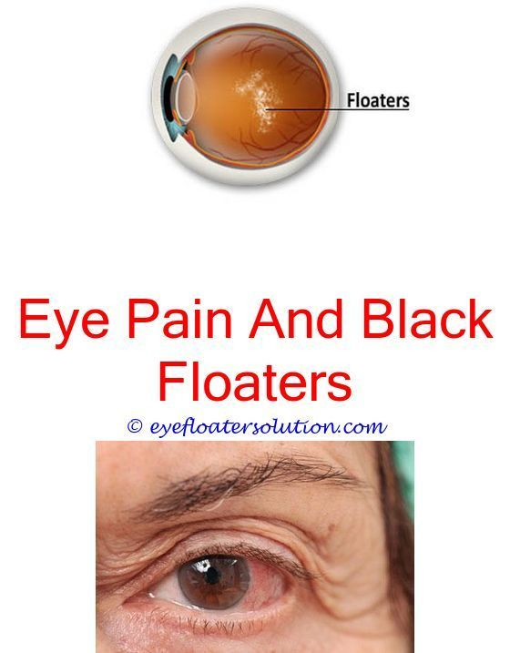 Large Floater On Eye Can A Brain Tumor Cause Eye Floaters Best Eye Exercises For Floaters Natural Remedies F What Causes Eye Floaters Floaters Eye Eye Health