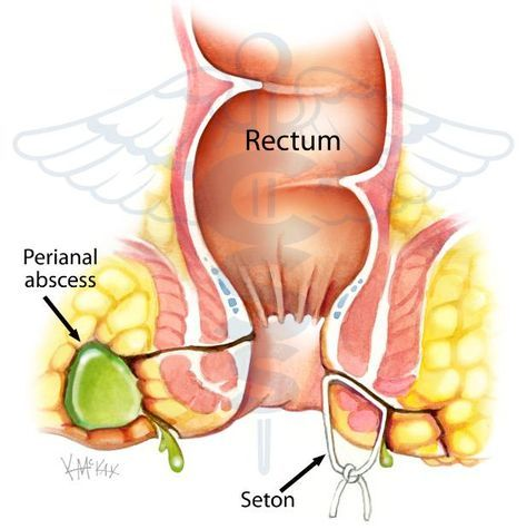 Drainage Of Fistula With A Silastic Seton Colorectal Immunotherapy Rectal