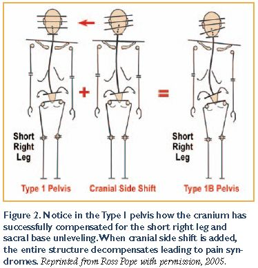 All Types Of Leg Length Discrepancies Lead To The Same