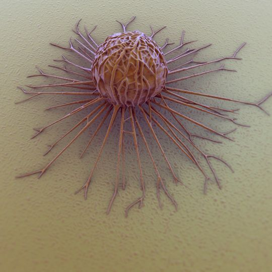 Silent killer... Viewed this way is not scary, indeed it even has something artistic, but behind this innocent appearance hides a killer who kills every year millions of women: it is a cell of breast cancer under the microscope.: