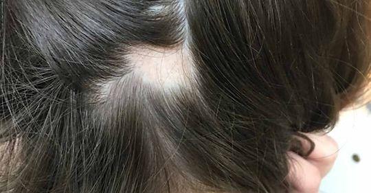علت و روش های درمان ریزش مو سکه ای-خانومی