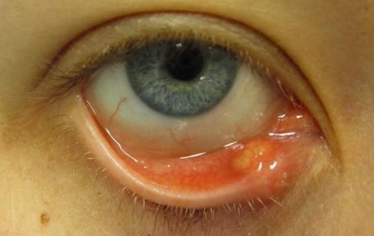 How To Get Rid Of Eye Stye Inside Eyelid