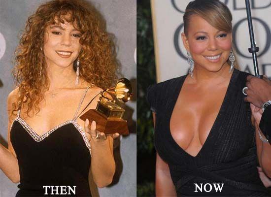 Mariah Carey avant et après chirurgie esthétique