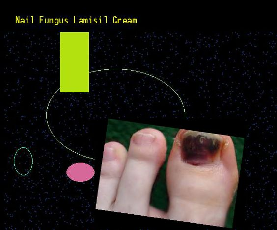 Nail Fungus Lamisil Cream Remedy You Have Nothing To Lose Visit Site Now Vicks Pinterest Nails And Remes