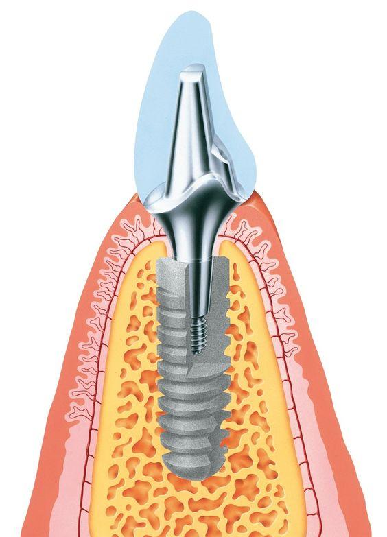 #Premuium #Implantat - warum ? http://www.zahn-implantate-berlin.de/deutsch/news/premium-implantat.html