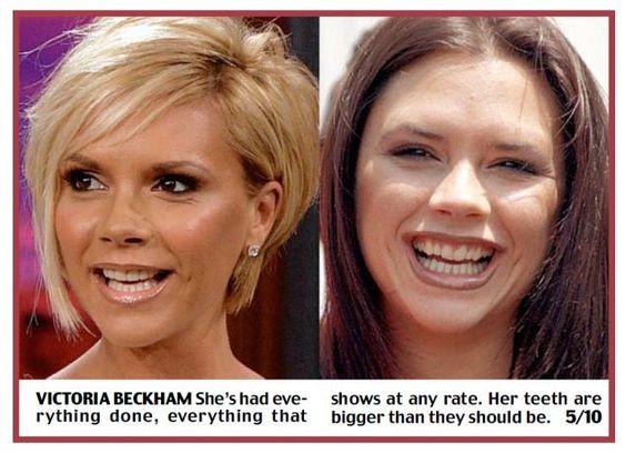 виниры для зубов perfect smile veneers купить