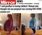 Credeva di essere incinta ma aveva una cisti ovarica di 30 kg in grembo