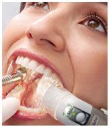 Many dental procedures require a dry mouth and for you to keep your jaw open for long stretches. Isolite™ is a great technology that helps with both aspects while eliminating the use of a rubber dam. The tool provides suction and a brilliant light that helps the dentist see the oral cavity more clearly, keeping it dry and your mouth comfortably open in the process. Treatment becomes more efficient, and time in the chair is reduced by about a third.