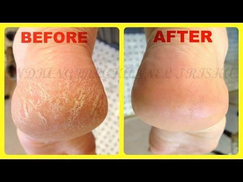 Home Remedies for Cracked Heels /remove cracked Hills fast & easyly at home - YouTube