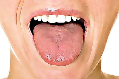 6 Home Remedies For Tongue Ulcer On Tongue Tongue