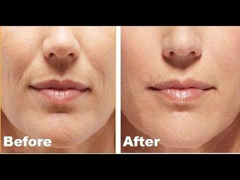 How To Get Rid Of Laugh Lines Naturally L Remove Mouth Wrinkles At Home Youtube Howtoremovewrinkles Mouth Wrinkles Smile Wrinkles Forehead Wrinkles