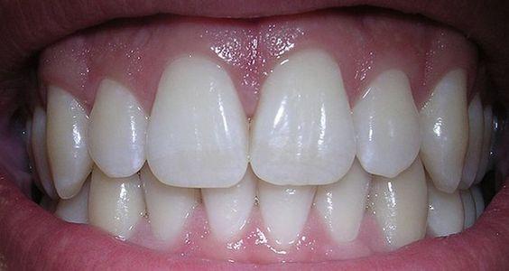 Voici comment éviter les maladies des gencives et les caries dentaires naturellement grâce à des remèdes et des bains de bouche faits maison.
