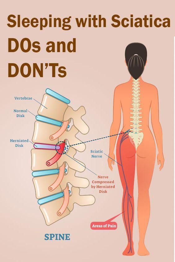 i dureri de acupunctură