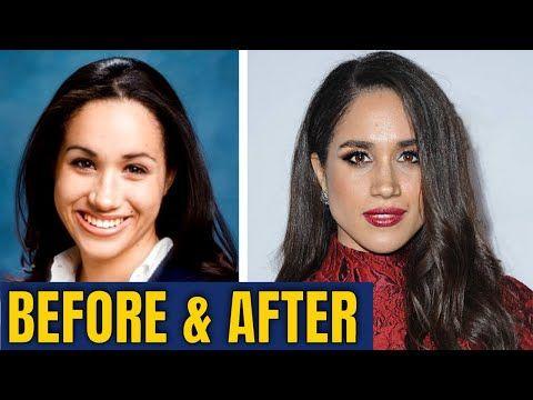 Meghan Markle Plastic Surgery 2020 Youtube Bad Celebrity Plastic Surgery Meghan Markle Plastic Surgery Celebrity Plastic Surgery