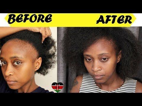 How to treat bald head naturally