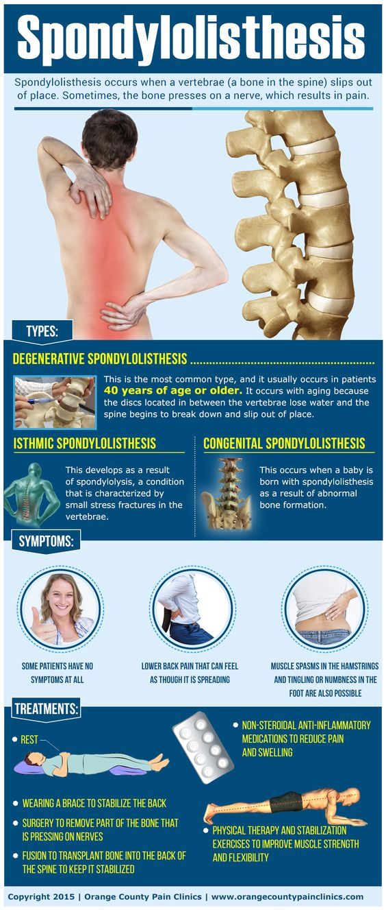 spondylothesis pain Lower back pain and/or leg pain are the most typical symptoms of degenerative  spondylolisthesis some patients do not have any back pain with degenerative.