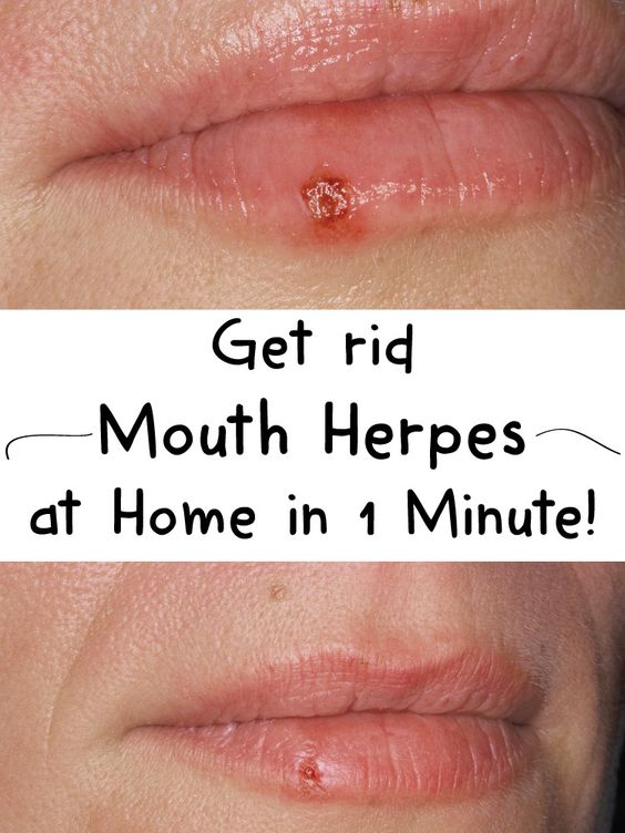 Ulcers in mouth from herpes dating