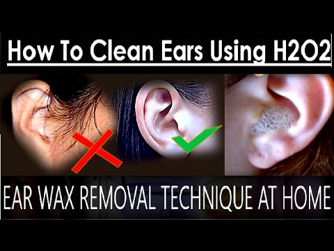 Found On Google From Youtube Com Ear Wax Removal Ear Cleaning How To Remove