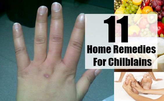 For those of you who do not have an idea of what it means, Chilblains is the medical term used to denote the blisters and ulcers that appear on the fingers, toes, ears and nose due to frostbite. Also called as Perniosis or just Pernio, the condition can affect any part of the skin that is exposed to exceedingly cold temperatures, and is more prevalent in the winter seasons.Although chilblains usually occur in winter and are more common in individuals who are extremely sensitive to the cold…