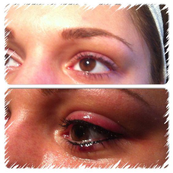 Trucco permanente eyeliner  sotto e sopra