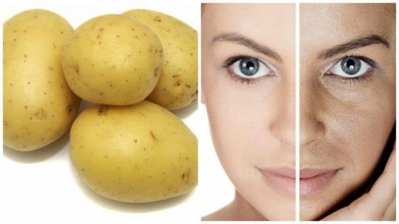 ELIMINATE THE SPOTS OF YOUR SIDE IN ONLY 3 NIGHTS, WITH THIS HOME REMEDY.     Health with Remedies