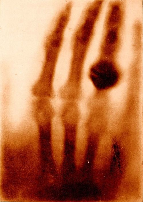 The hand of Mrs. Wilhelm Roentgen: the first X-ray image, 1895  The announcement of Roentgen's discovery, illustrated with an X-ray photograph of his wife's hand, was hailed as one of mankind's greatest technological accomplishments, an invention that would revolutionize every aspect of human existence.