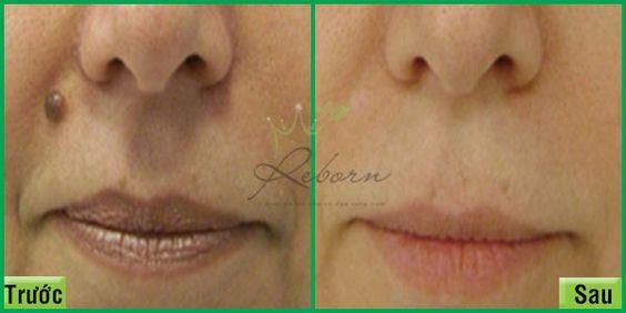 Tẩy nốt ruồi bằng laser tại Reborn skin clinic áp dụng cho mọi lứa tuổi