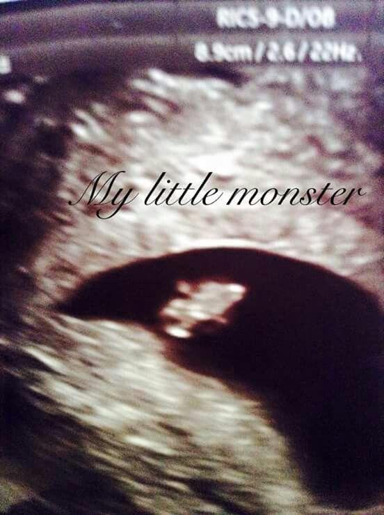 Lincoln at 6 weeks