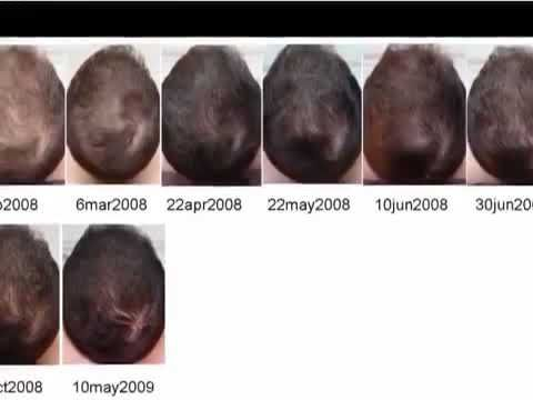Image result for minoxidil pak darou