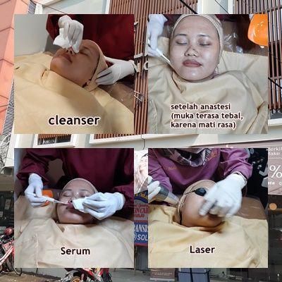 perawatan wajah di klinik sidoarjo tanpa operasi