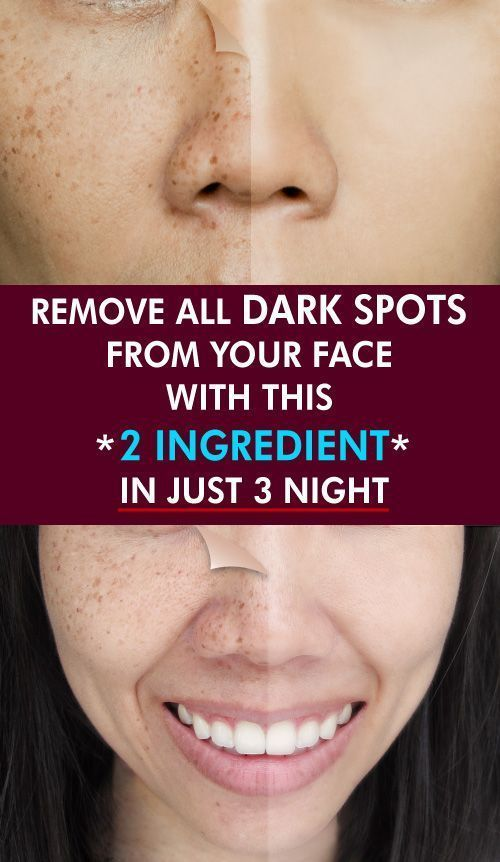 This 2 Ingredient Remedy Removes All Spots From Your Face In Just 3 Nights As People Get Older They Have Exposed To Too Man How To Remove Good Skin Tips Skin