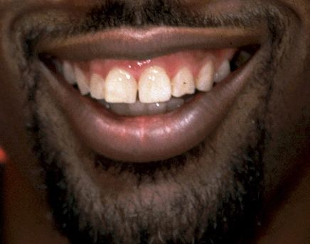 Tummy tuck before and after celebrity veneers