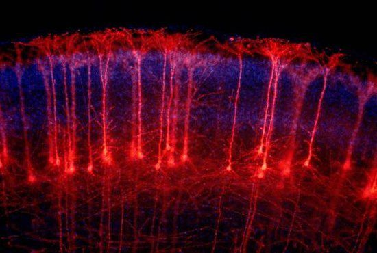 The brain is a beautiful thing! Neurons in cerebral cortex
