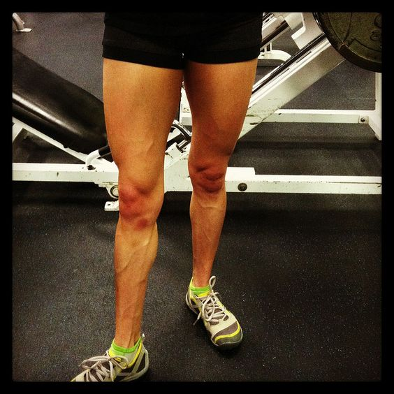Work It Out: Save Your Knees | Legs, Exercise and Leg ...