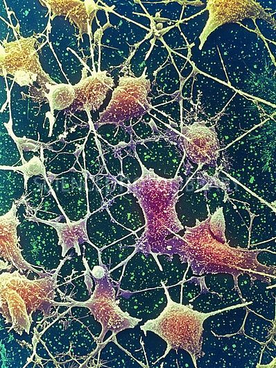 Nerve cells. Coloured scanning electron micrograph (SEM) of nerve cells, known as neurones.