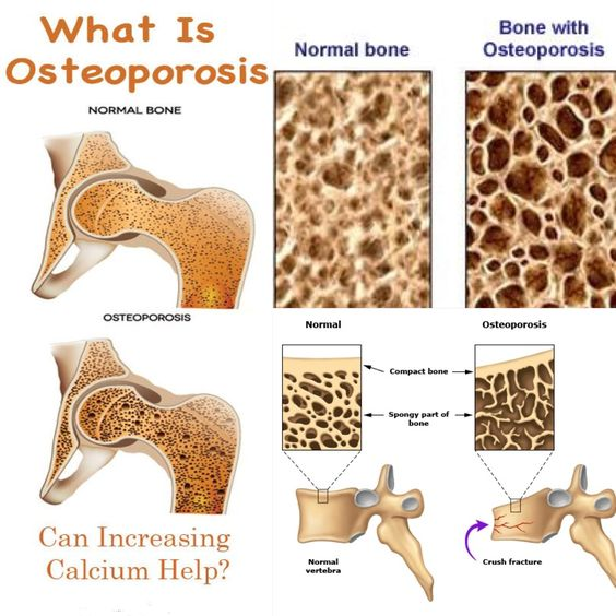 Is taking calcium enough for Bone Density? It used to be that taking calcium and doing weight bearing exercise were all you needed to ensure strong bones. While these activities are pluses we know more now and there are other pieces to the bone density puzzle. Of equal importance are adequate amounts of Vitamin D3, Magnesium, Vitamin B12, Progesterone, Estrogen and Testosterone.