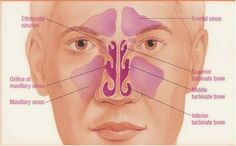 how to drain the maxillary sinuses - Google Search