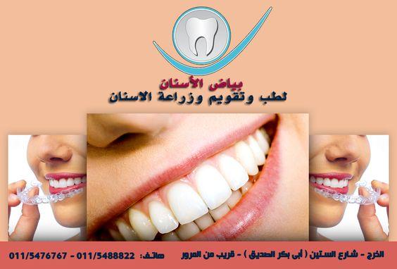 لا حدود لجمال الابتسامة مع #مركز #بياض #الاسنان