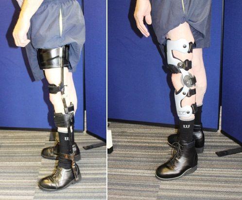 Cumbersome NHS leg calliper vs. lightweight carbon fibre ...
