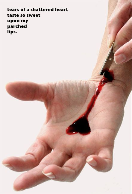 how to get a knife cut to stop bleeding