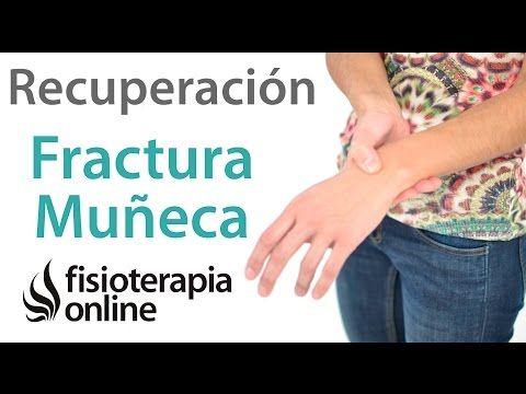 Fracturas De Muñeca Radio Y Cúbito Tratamiento Y Cuidados Para Su Recuperación Youtube Fractura De Muñeca Fracturas Recuperación De Cirugía