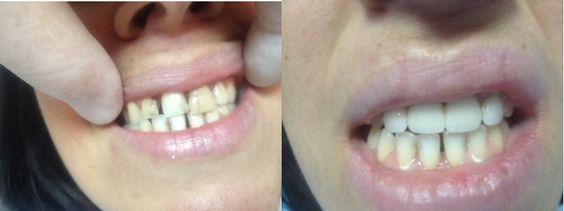 La couronne dentaire restaure une dent trop abîmée.  Tarifs : Couronne céramo-métalique : 250€ Couronne céramo-céramique : 350€ Couronne zirconium : 425€  http://www.sunesthetique.com/