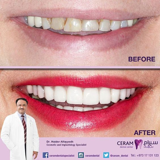 """This is the before & after photo of Ms. Kawther's Emax Veneers. """"I'm so grateful to the best cosmetic dentist, Dr. Haidar Alfayadh, for giving me this amazing smile"""" -  Ms. Kawther  شكر موصول بالامتنان للفنان المبدع اختصاصي تجميل الأسنان د حيدر الفياض لمنحي ابتسامة اكثر من راءعة ..كوثر - Ms. Kawther  For more information and appointments please call us on 17131123 or 39795440.  د.حيدر الفياض، اخصائي تجميل وتركيب اﻻسنان، عضو اﻻكاديمية اﻻمريكية لتجميل اﻻسنان. اخصائي زراعة اﻻسنان (المانية)…"""