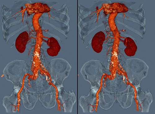 Abdominal aortic aneurysm by voxel123 via flickr my job for Aortic aneurysm with mural thrombus