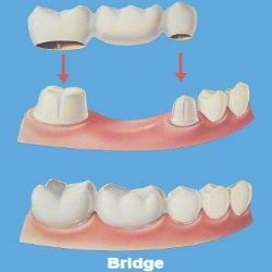 This article is written by a famous cosmetic dentist Calabasas. He has several years of experience of working with crowns, veneers and implants Calabasas and has written several articles on cosmetic dentistry. http://calabasassmiles.com/