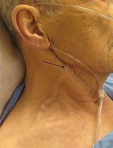 hepatojugular reflux   man with congestive heart failure and marked jugular venous ...